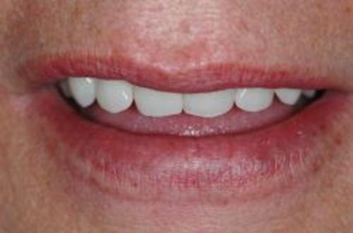 glimlach-aansluitend-tandvlees-prothese