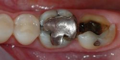 Verotte-tand