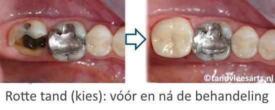 Plaatje van een rotte kies. Deze mate van tandbederf valt niet meer te repareren met een vulling, duszal er een kroon moeten worden geplaatst.