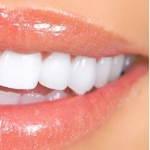 Cosmetische <br> Tandheelkunde