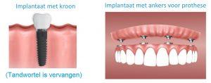 kunstgebit-vs-implantaat