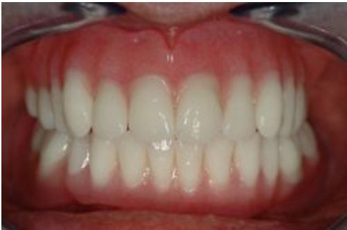 gesloten-mond-prothese