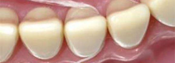 Ontstoken Tandvlees: Oorzaken, Gevolgen en Behandeling