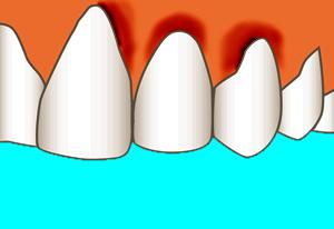 Ontstoken-tandvlees-behandelen