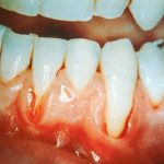 Periodontitis-vs-ontstoken-tandvlees