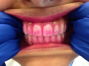 Tandplakverklikkers helpen je om te zien waar je beter moet poetsen