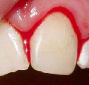 bloedende-tand