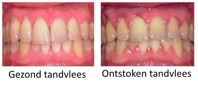 gezond-tandvlees-vs-ontstoken-tandvlees