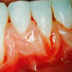 Wat is Parodontitis? En hoe kun je het behandelen?