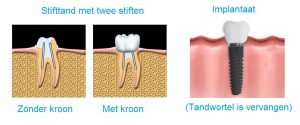stifttand-implantaat-verschil-pivot-tooth