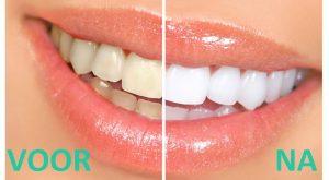 tanden-bleken-prijs-2