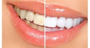tanden-bleken-prijs-3