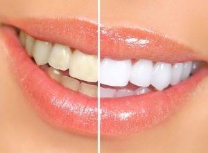 tanden-bleken-prijs