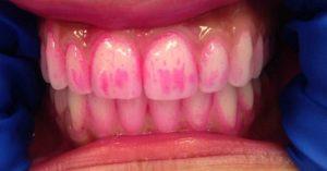 Tandplakverklikkers zijn kauwtabletten met een rode kleurstof, die laten zien waar het tandplak en tandsteen zich bevindt.