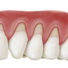 Terugtrekkend tandvlees: oorzaken en tips