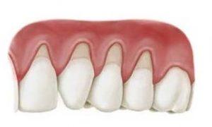 teruggetrokken-tandvlees