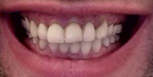 terugtrekkend-tandvlees-met-zichtbaar-tandbeen-bij-kronen
