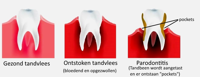 Tanden bleken pijnlijk tandvlees