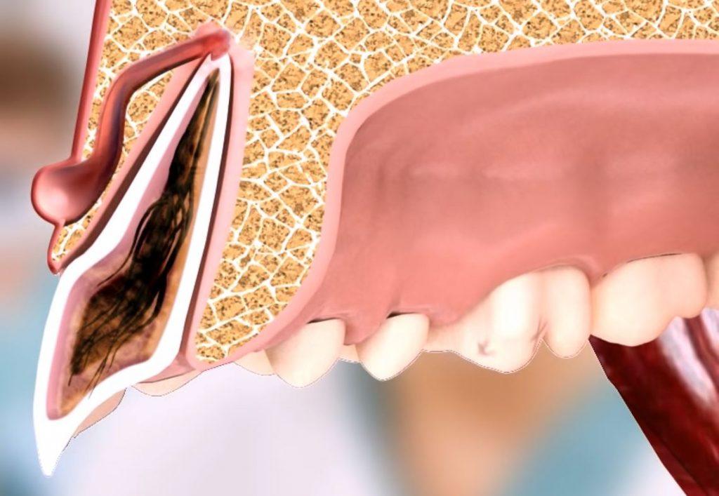 fistel mond