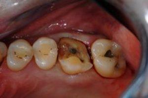 rotte-tanden-2