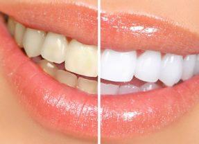 Tanden bleken: thuis of bij de tandarts?